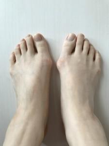 外反母趾&内反小趾